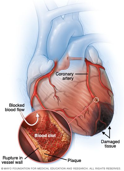 A #heart #attack occurs when an artery supplying your heart with blood and oxygen becomes blocked. Fatty deposits build up over time, forming plaques in your heart's arteries. If a plaque ruptures, a blood clot can form and block your arteries, causing a heart attack. During a heart attack, tissue in your heart muscle dies due to lack of blood flow through your heart's arteries.