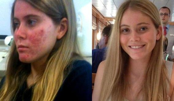 How to Get Rid of Acne? (Fast Acne Treatment)