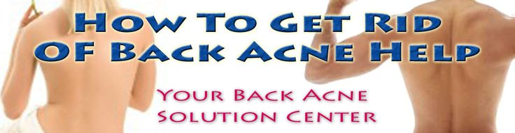 Back Acne Causes - What Are You Doing To Bring About The Condition? | How To Get Rid Of Back Acne Help