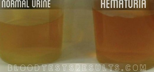 Man About 40 Have Urinary Bleeding Blood In Urine