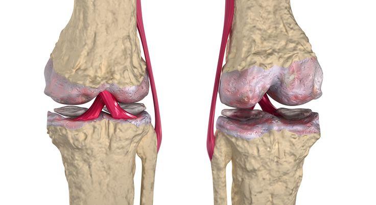 Consejos y remedios naturales para la regeneración del cartílago en cadera y rodillas