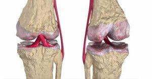 rimedio osteoartrite
