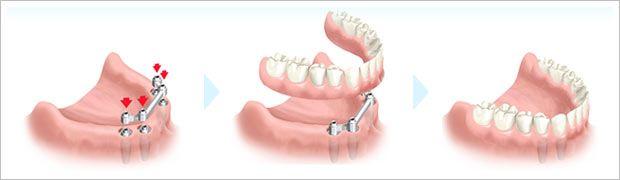 Vi gjennomfører diverse tannbehandlinger som tannimplantat, akutt tannbehandling, tannregulering, rotfylling, helprtese, trekking både enkel og komplisert og kompositfylling. http://www.billigtannlegeoslo.com/tannbehandling/