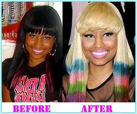 Nicki Minaj. She looks so much whiter now. | Before They Were Famous ...