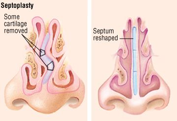 Deviated Septum Guide: Causes, Symptoms and Treatment Options