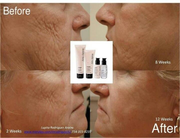 Before an after shots of using time wise repair set. Comes in 2 forms. Dry to normal, for hydration. And oily to combo, for hydration an absorbing oil through out the day. If your interested in learning more visit my website www.marykay.com/ahollingsworth11 I can send you catalog, with samples for you to try!