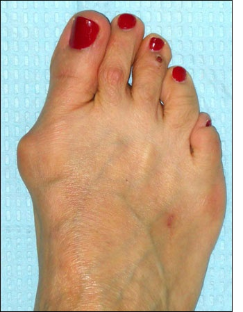 Bunions: Www Meanfeet Com, Foot Health, Fit Bunion, Meanfeet Range, Shoes Sandals, Relief Footwear, Bunion Relief, Physics Therapy, Feet Foot Problems