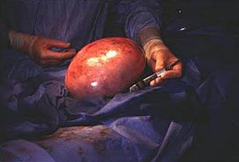 Mumbai doctors remove 20 kg rare #ovarian #tumor from 50-yr-old