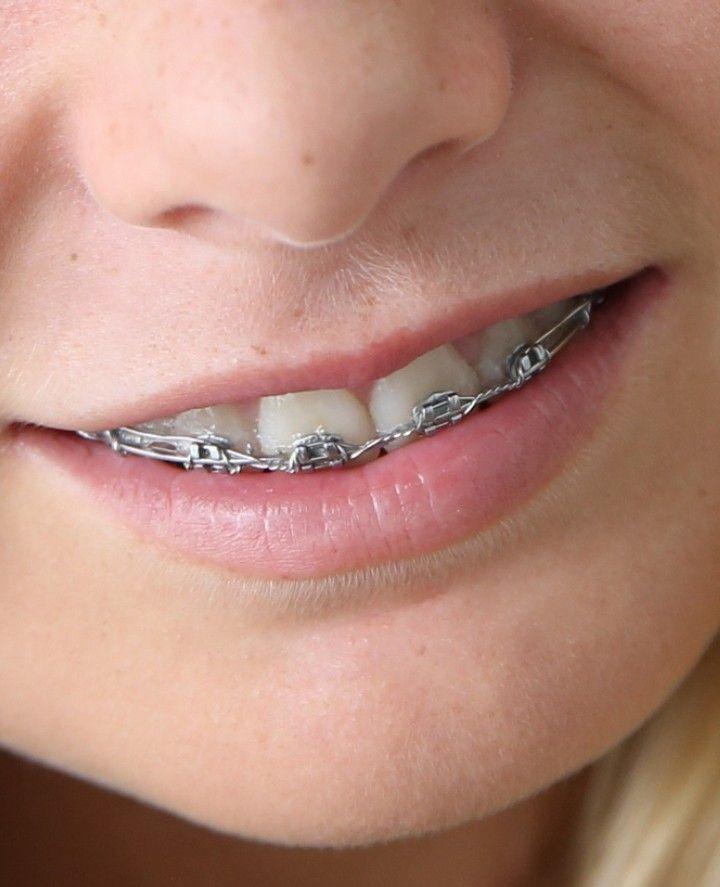 dental braces orgasm crutches my
