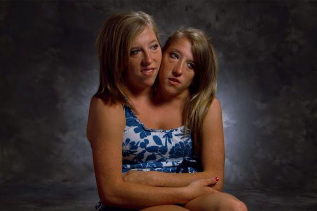 #Abigail et Brittany Hensel, les soeurs siamoises devenues professeures - Le Vif: Le Vif Abigail et Brittany Hensel, les soeurs siamoises…