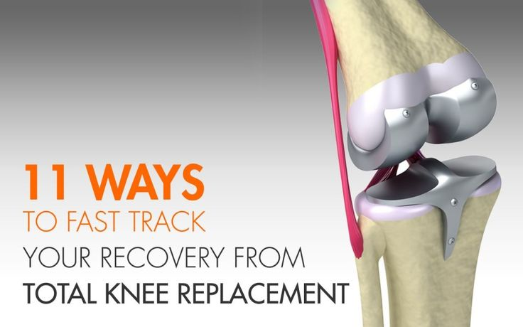 11 Ways to Fast Track Your Recovery from Total Knee Replacement #healthtips #healthandwellness