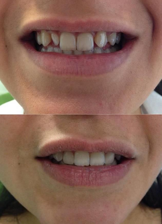 Veneers Front Teeth