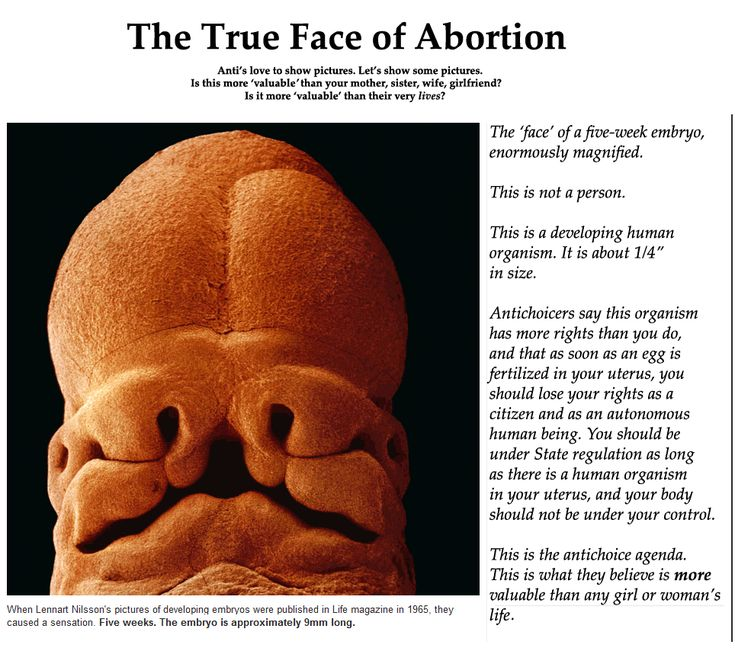 what about abortion Abortion: the intentional killing of the human fetus, or the performance of a procedure intentionally designed to kill the human fetus abortion is the murder, the sacrifice, of tiny neighbors who have not yet been born.