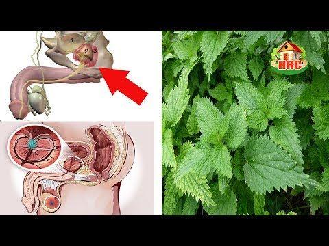 (398) Una Sola hoja de esta Planta te Vuelve la Próstata como un niño, Elimina la Diabetes y el Cancer - YouTube