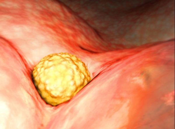 La Progesterona en el embarazo