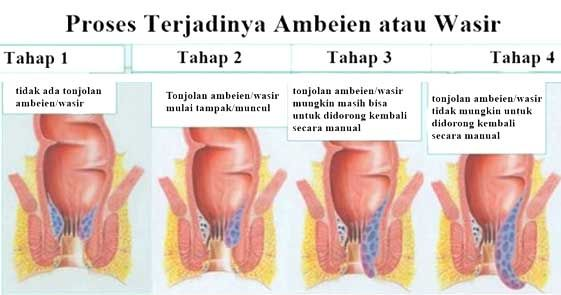 Tips: Terapi Untuk Ambeien - 1. Kompres Dengan Es, 2. Rajin Membersihkan Area Anus, 3. Berendam Dalam Air Hangat, beberapa terapi yang bisa anda