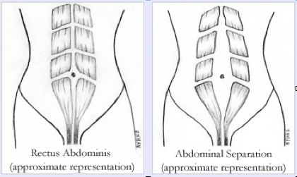 What is diastasis recti -- safe ab and core strengthening for post-preg ab muscle divisions