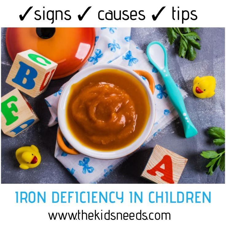IRON DEFICIENCY IN CHILDREN SIGNS- Skin discoloration(pale ...