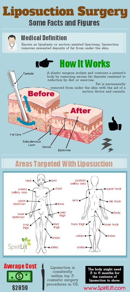 A great one about liposuction in a nutshell.