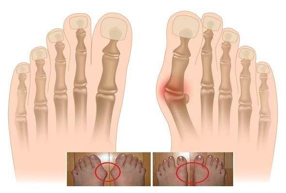 Operaci nepotřebujete. 5 způsobů jak léčit haluxy a oteklé klouby