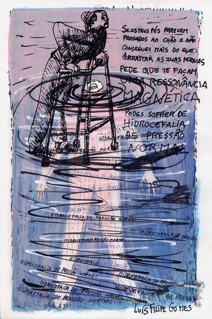 LUIS DESENHA: NORMAL-PRESSURE HYDROCEPHALUS ------------- HIDROC...