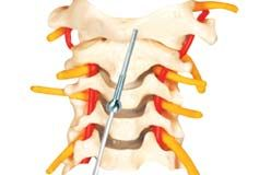 Cannulated screw fixation is useful in the cervical spine to stabilize odontoid fractures and to treat atlantoaxial instability - http://www.gescoworld.com/cofs-cannulated-odontoid-fixation-system.php