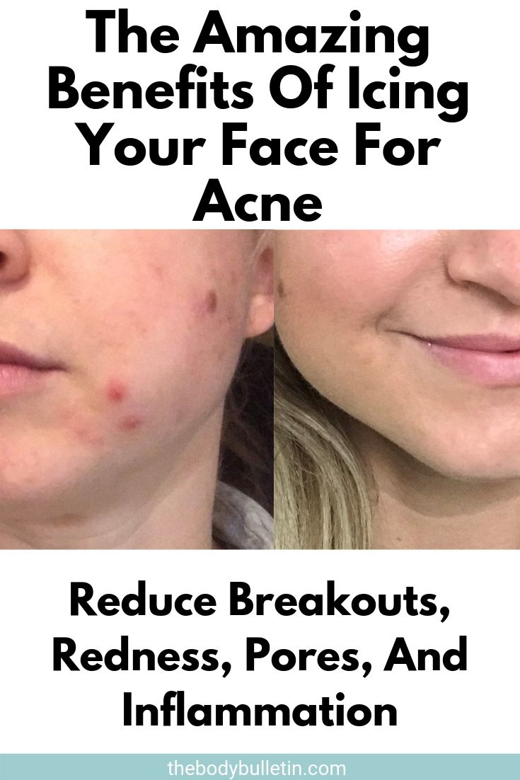I Tried Ice On My Face For Acne Here S What Happened In 2020 Reduce Face Redness Forehead Acne Acne Prone Skin