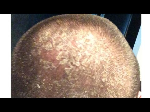 How To Treat Bad Dandruff Naturally