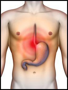 Las personas con esofago de Barret tienen un mayor riesgo de contraer un tipo de…