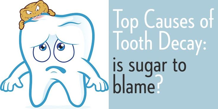 Is it sugar's fault? Here are the top causes of tooth decay: brought to you by Sunlight Dental Group in Pearland TX! Call for an appt today!