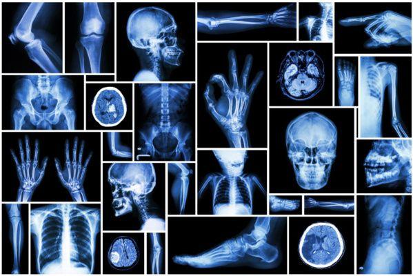 le 8 novembre, Journée internationale de la radiologie