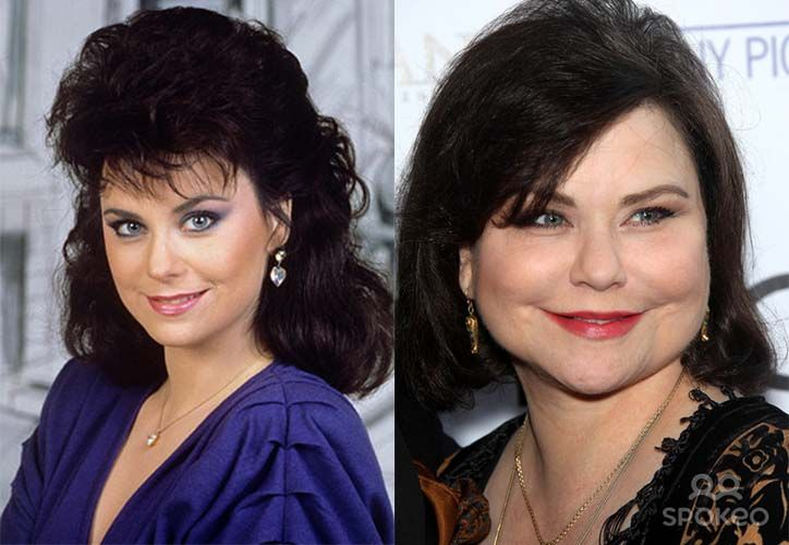 Delta Burke Plastic Surgery Gone Wrong Pictures | Celebrity Tara ...