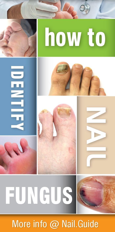 Identifying Nail Fungus