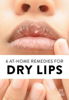 6 At-Home Remedies For Dry Lips