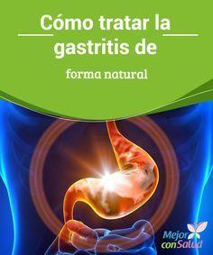 Cómo tratar la gastritis de forma natural Cuando la mucosa gástrica se inflama, presenta enrojecimiento o pequeñas hemorragias es porque padecemos gastritis (una patología cada vez más frecuente).