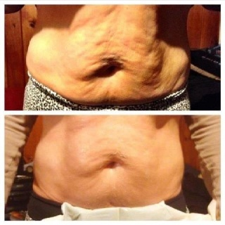 She wanted to firm, tone and tighten her skin. She skinny-wrapped once. myskinnygirlwraps@gmail.com or https://melissathomaswrapsyouthin.myitworks.com to order your Ultimate Body Applicator.Body Wraps, It Work, 45 Minute, Work Wraps, Skinny Wrap, Ultimate Body, 45Minute, Body Application, Work Body