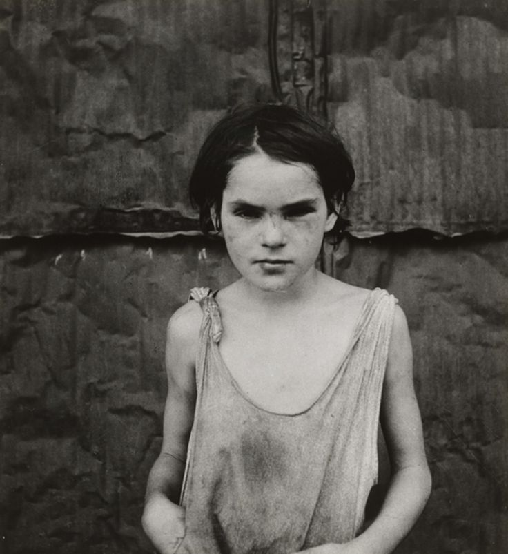 """""""Damaged Child, Shacktown, Elm Grove, Oklahoma 1936"""" - Dorothea Lange, Photographer (I don't know what the quote means but I know this child does not look well. The Depression years have been harsh on her in many ways)  ßε α† pεαςε  <3"""