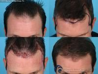 Are male hair regrowth products effective? | HealthTap