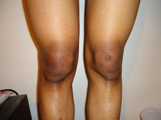 5 WONDERFUL WAYS TO REMOVE DARK ELBOWS AND KNEES