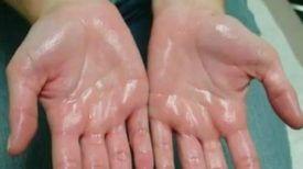 Hyperhidrose : Voici Comment mettre fin à la transpiration au niveau des mains et des pieds …