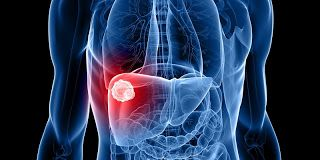 How to Keep Your Liver Healthy   Diseases of this often-overlooked organ are on the rise especially in older adults.  Youre probably familiar with at least some of the factors that affect your heartblood pressureandcholesterol for example. But how much do you know about the state of your liver?  It might sometimes be an afterthought but your liver plays crucial rolesmetabolizing fats carbs and protein and helping to process medications and clear toxic substances such as ammonia from the…