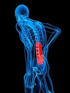 Pains You Should Never Ignore - Severe Back Pain - could be an abdominal aneurysm - a dangerous weakening of the aorta just above the kidneys - could be a kidney stone
