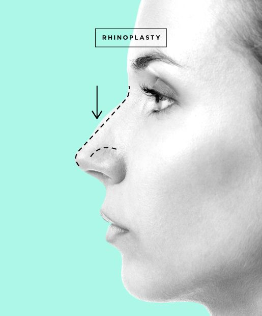 Nose Job aka Rhinoplasty - http://www.newjerseyplasticsurgery.com/surgical/face/rhinoplasty/