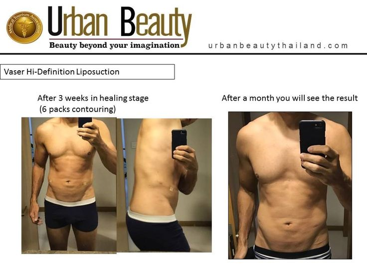 Male Breast Reduction & VASER Hi Def Six-Pack Contouring in Thailand