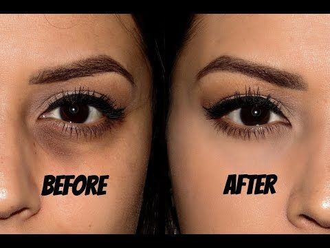 Best Way to Cover Dark Circles | For Indian, Tan, Olive Skin tone | Kavya K - YouTube