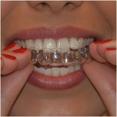 How Effective Are The Best Teeth Whitening Gel For Trays - Learn about best teeth whitening at home, plus white 5 minute bleach whitening gel, teeth whitening gel http://reviewscircle.com/health-fitness/dental-health/natural-teeth-whitening