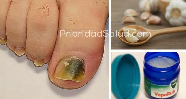 Las infecciones por hongos en las uñas de los pies son muy comunes. A menudo son causados por onicomicosis, y se caracterizanpor ladecoloraciónde lasuñas, uñas débiles y quebradizas.\r\n[ad]\r\nAquí te traemos 3 remedios naturales para tratar eficazmente las infecciones fúngicas.\r\n\r\nRemedio natural no.1: Vicks VapoRub\r\nVicks VapoRub es un producto conocido para el tratamiento de los resfriados y síntomas de la gripe. Sin embargo, este producto estrella, que todo el mundo tiene en…