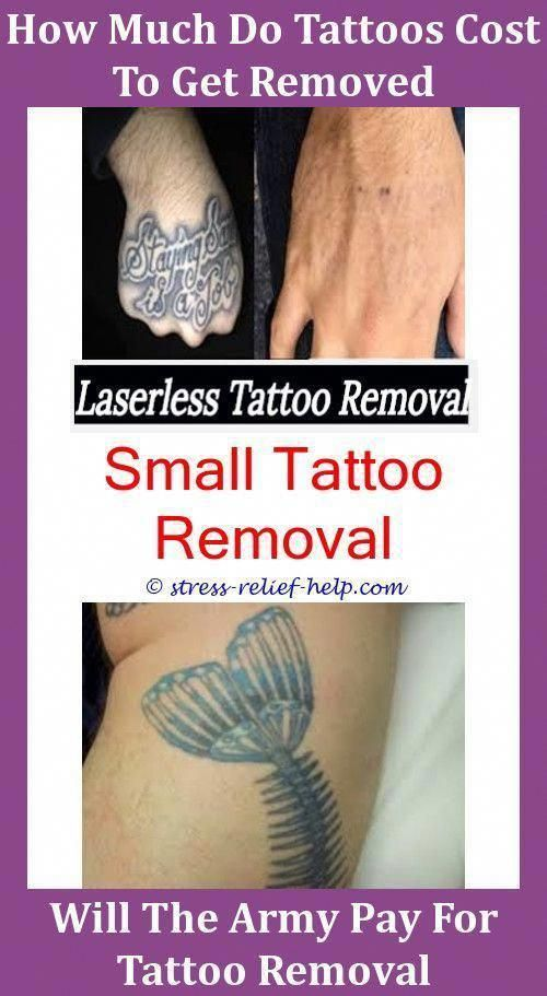 Tattoo Removal Prices Picosure Tattoo Removal Price How To Get Rid ...