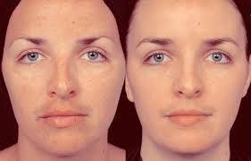 Pigmentflecken im Gesicht, Pigmentflecken verschwinden