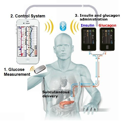 'Bionic Pancreas' Developed For Type 1 Diabetes Patients ... see more at InventorSpot.com